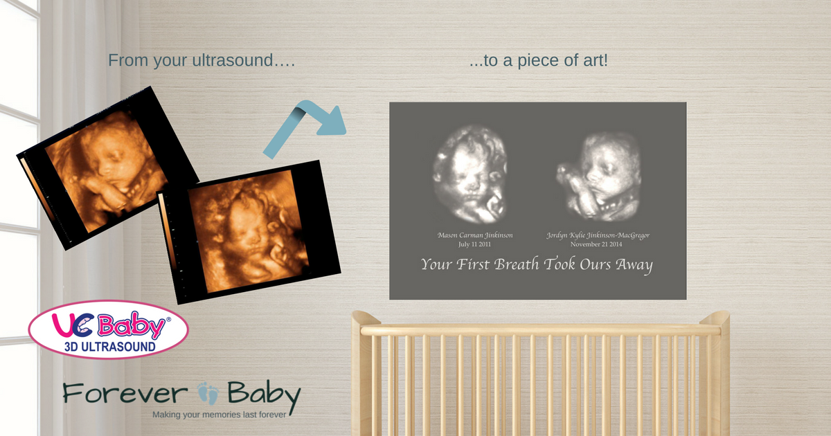 win 3d ultrasound custom baby canvas