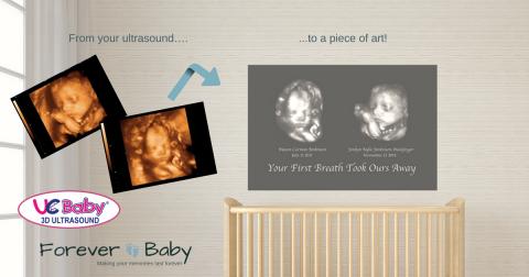 win 3d ultrasound custom baby canvas